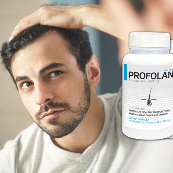 Profolan - l'aiuto per la perdita dei capelli? Abbiamo testato!